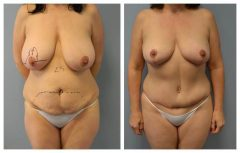 Patient 5 with Breast Augmentation Before & After photos