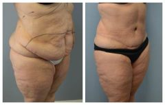 Tummy Patient 3 Before & After photos