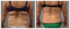 Tummy Patient 4 Before & After photos