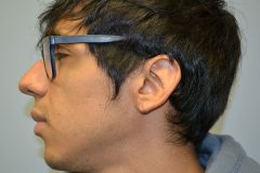 Gauged Ear Repair Patient 1 Before & After photos