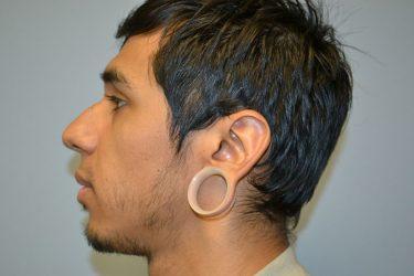 Gauged Ear Repair