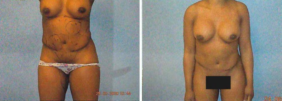 Gynecomastia Patient 4